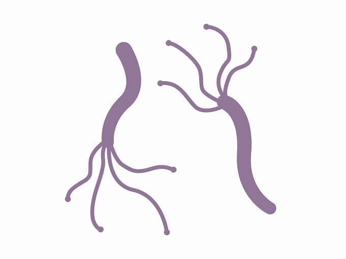 胃潰瘍・十二指腸潰瘍の原因